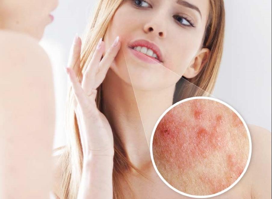 allergiya – chastaya prichina pryshhej v oblasti brovej 5